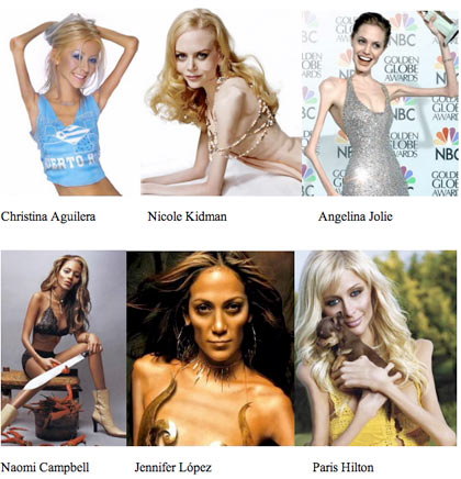 famosas con anorexia celebrities with anorexy