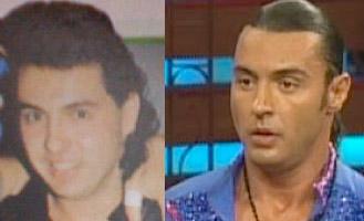 Latin Lover antes y despues operacion