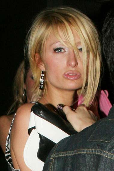 Paris Hilton new lips