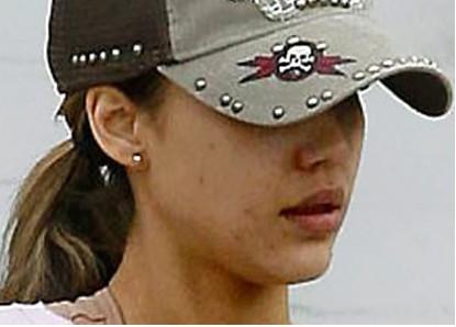 Jessica Alba acne