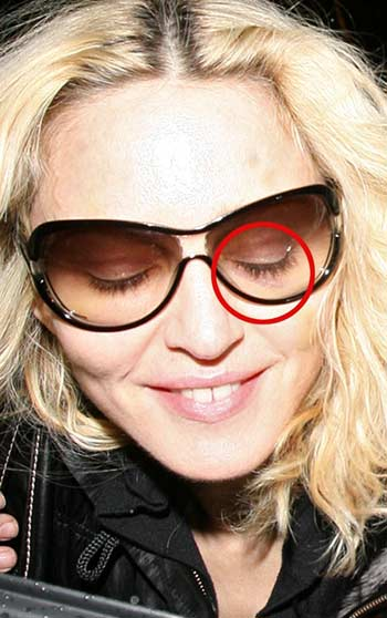 Madonna hacen sospechar de cirugía plástica