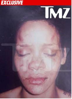 Foto de Rihanna golpeada circula en la red