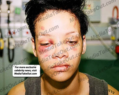 Dan a conocer más fotos de Rihanna golpeada por Chris Brown