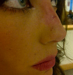 Anahí se volverá a operar la nariz