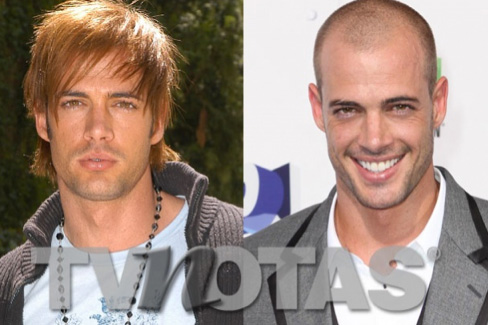 William Levy se injertó cabello