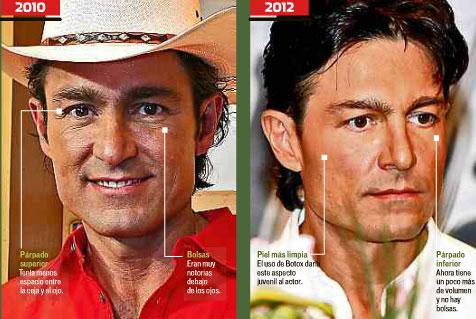 Fernando Colunga luce rostro rejuvenecido