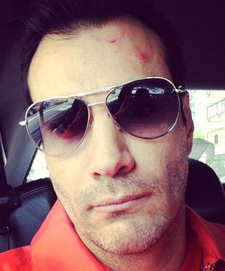 David Zepeda herido por Enrique Iglesias