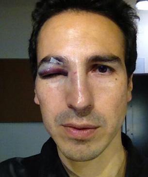 Andrés Montiel golpeado