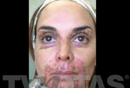 Lupita Jones con la cara marcada y paralizada