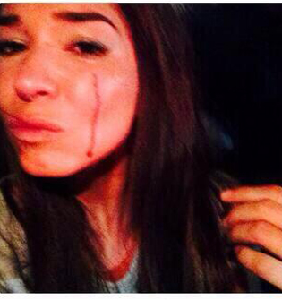 Laura G después de asalto