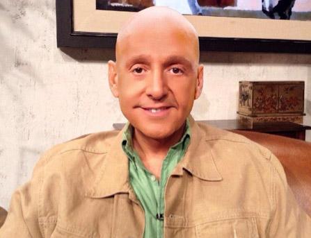 Daniel Bisogno sin cabello